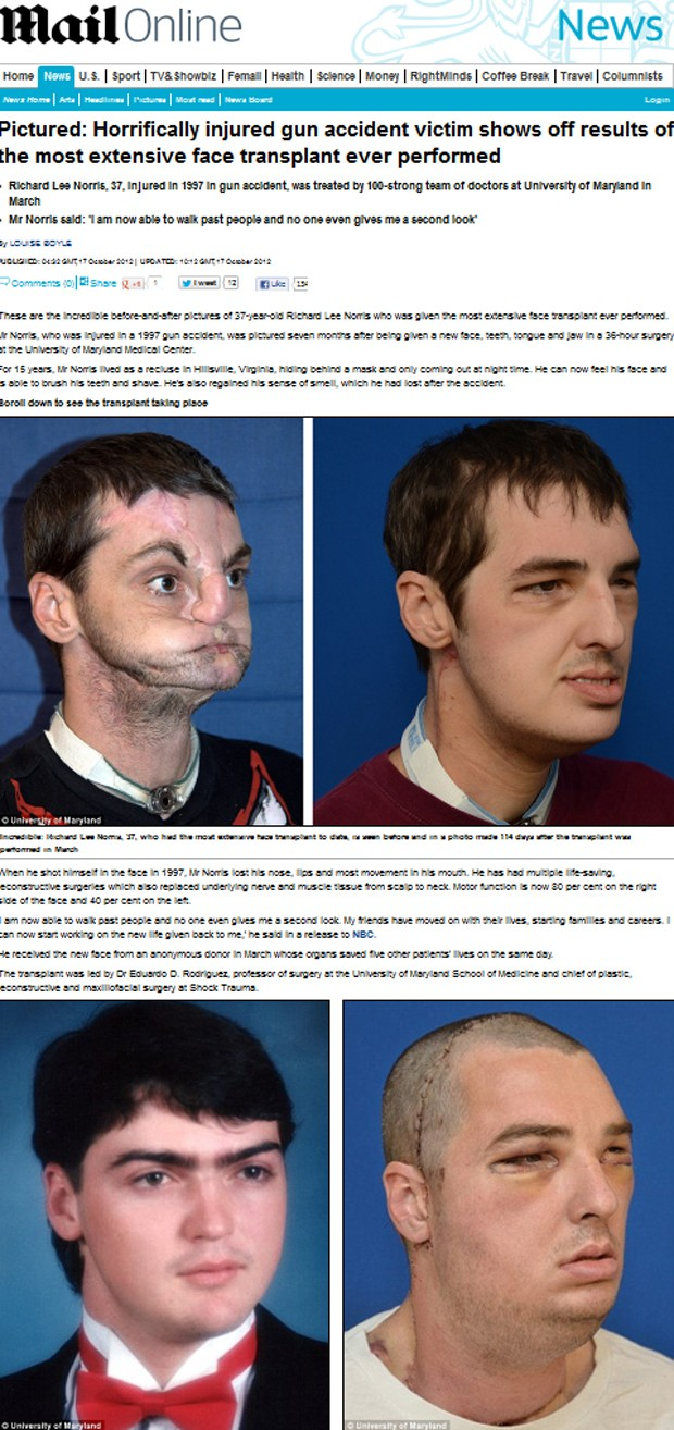 Transplante de face (Foto: Daily Mail/Reprodução)