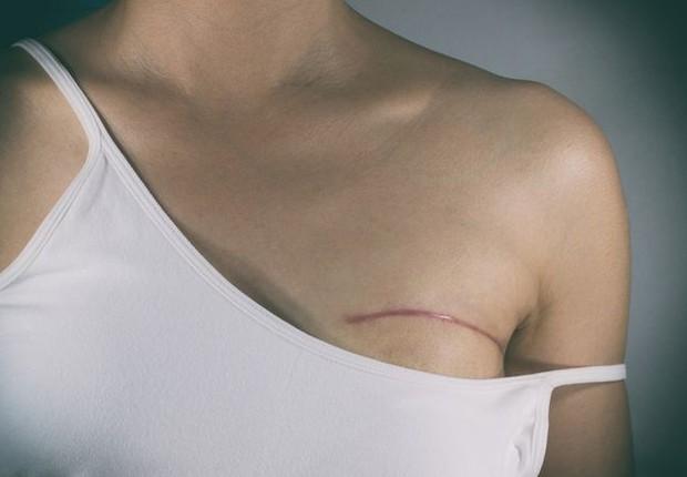 câncer de mama (Foto: Thinkstock)