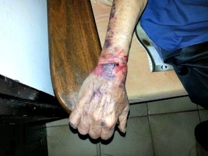Idoso ficou com marcas após ser amarrado por ladrões (Foto: Assessoria/ PM-MT)