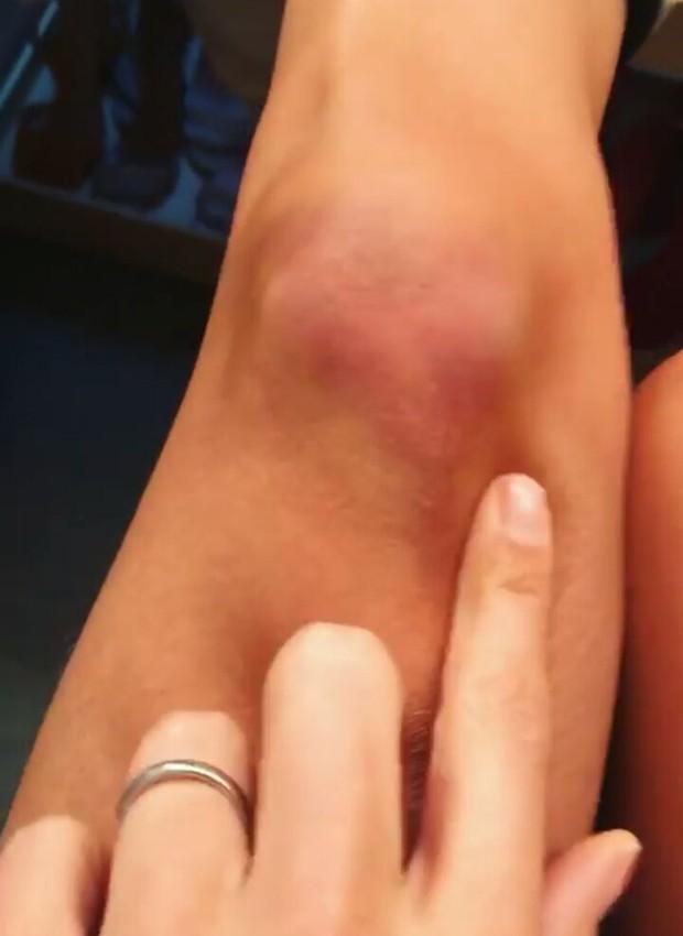 Isabella Fiorentino mostra hematoma no joelho (Foto: Reprodução/Instagram)