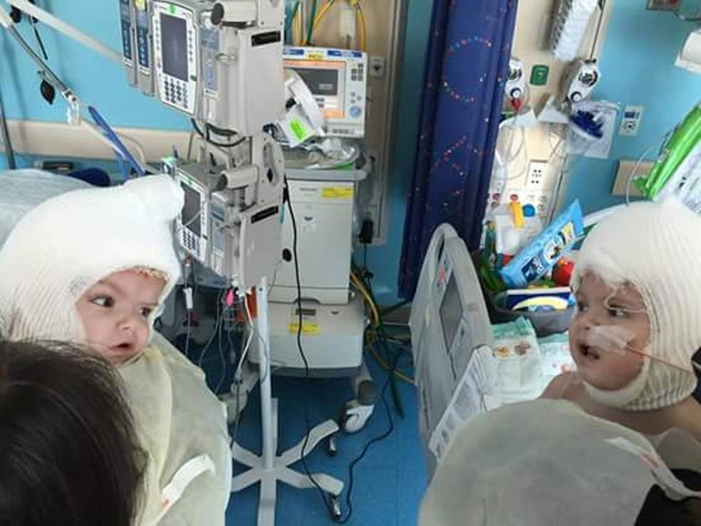 Resultado de imagem para gêmeos que nasceram unidos pela cabeça se olham pela 1ª vez após cirurgia de separação
