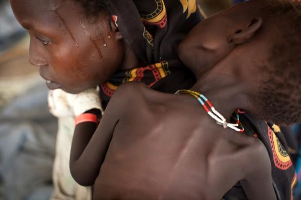 Imagem de 26 de julho mostra a sudanesa Akim Faha segurando a filha Tuna Osman em um dos hospitais de campo do Médicos sem Fronteiras no campo de refugiados de Batil, no Sudão do Sul (Foto: AFP)
