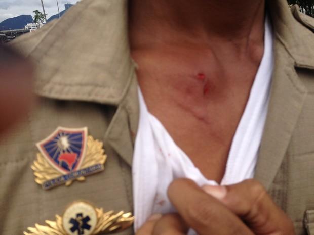 Guardas Municipais dizem ter sido atingidos por explosivos (Foto: Isabela Marinho/ G1)