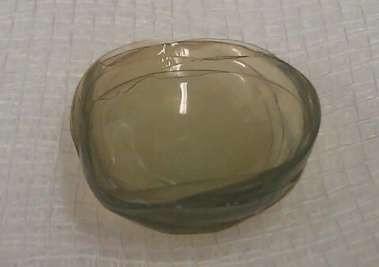 Médicos encontram 27 lentes de contato perdidas em olho de senhora ... f3d44bd2ba