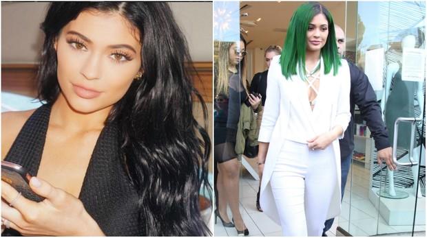 Kylie Jenner antes e depois (Foto: Reprodução/Instagram/X17)