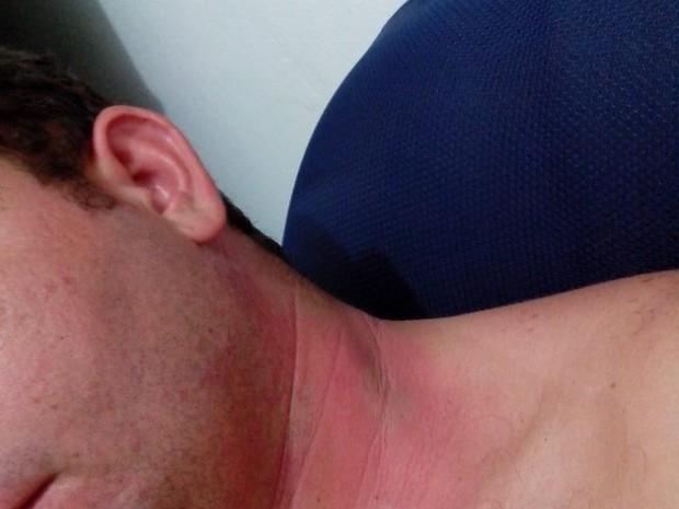 Professor Maycon Soares teve o pescoço queimado pelo potó (Foto: Arquivo pessoal)