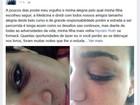Suspeito de agressão em Belém contesta versão de universitária