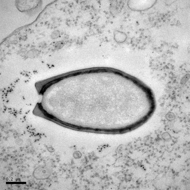 Um dos pandoravírus vistos ao microscópio eletrônico (Foto: Divulgação/ Science/ Chantal Abergel e Jean-Michel Claverie)