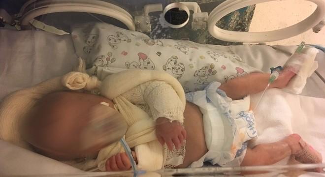 A bebê teve os dois braços quebrados em UTI de hospital em SP, segundo mãe (Foto: Arquivo pessoal)