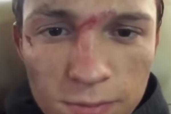 Tom Holland mostra os machucados no rosto que resultaram no nariz quebrado... Pela terceira vez (Foto: Reprodução/Instagram)