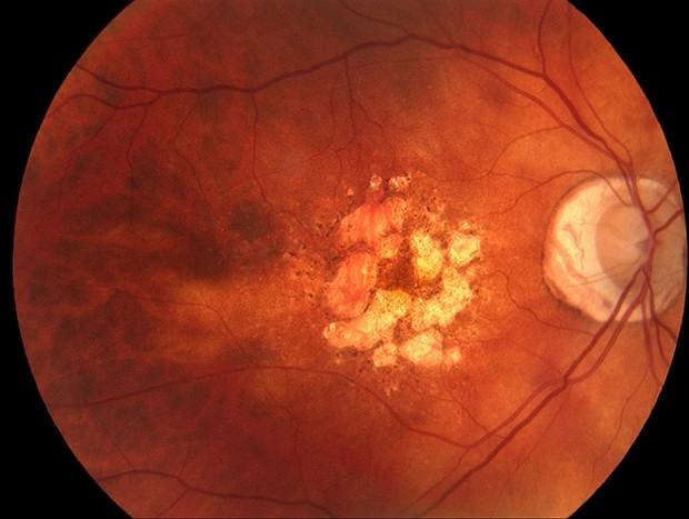 Distorção central da retina devido a DMRI