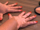 Técnicas disfarçam estrias, celulite, manchas e queda de cabelo