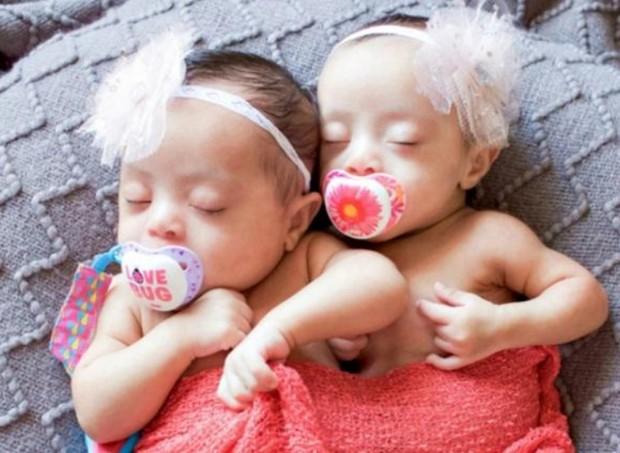 Gêmeas com Síndrome de Down (Foto: Laura Duggleby Photography)