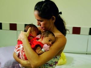 Eucivânia Cunha e as filhas Ana Clara e Any Vitória, que nasceram unidas pelo cóccix (Foto: Ricardo Araújo/G1)