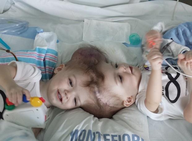 Gêmeos siameses (Foto: Reprodução / Facebook)