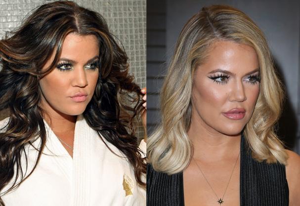 Antes e depois de Khloé Kardashian. Compare 2008 com 2015 (Foto: Getty Images)
