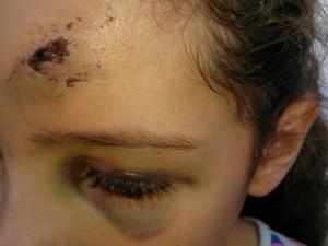 Ferimento na cabeça da criança foi provocado por uma pedrada (Foto: Cláudio Nascimento / TV TEM)