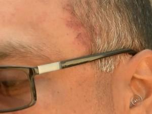 Agente teve machucados após agressão (Foto: Reprodução / TV TEM)