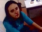 Policial suspeito de agredir e quebrar nariz de advogada no CE é afastado