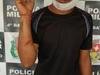 No AP, suspeito de esfaquear vigilante de escola é preso ao procurar hospital