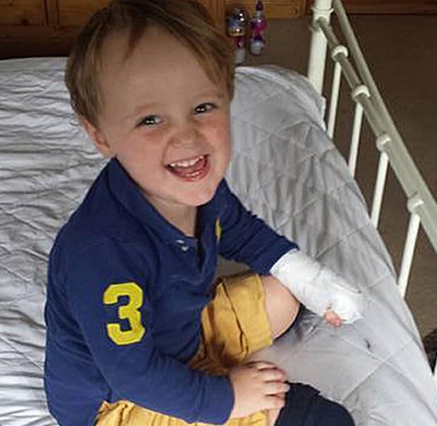 Reuben perdeu as duas pernas abaixo do joelho e sete dedos da mão após falha do hospital  (Foto: BBC)