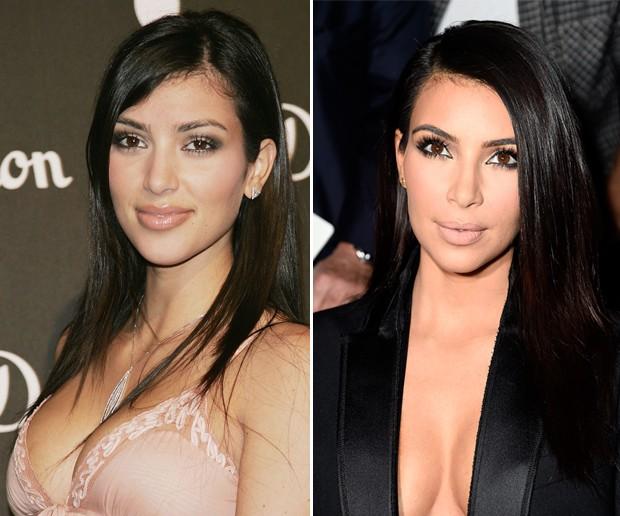 Antes e depois: Kim Kardashian (Foto: Getty Images)