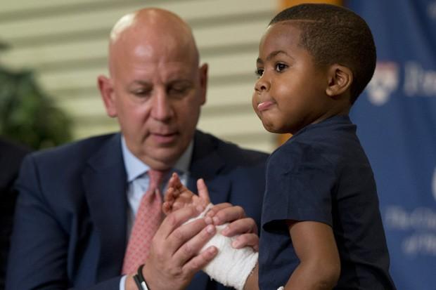 Médico L. Scott Levin observa a mão do paciente Zion Harvey, que foi submetido a um transplante duplo de mãos; ele teve pés e mãos amputados há alguns anos por uma infecção (Foto: AP Photo/Matt Rourke)