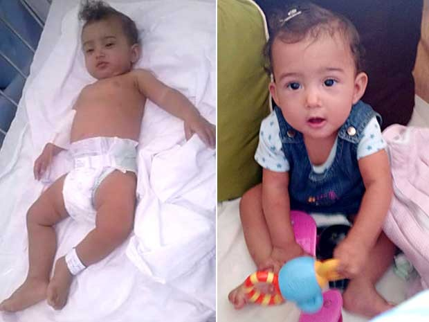 A bebê Nikolly Landim em dois momentos: no hospital, logo após ser encontrada pelos bombeiros (esquerda); e duas semanas depois (direita) (Foto: Magda Lamdim de Farias/Arquivo Pessoal)