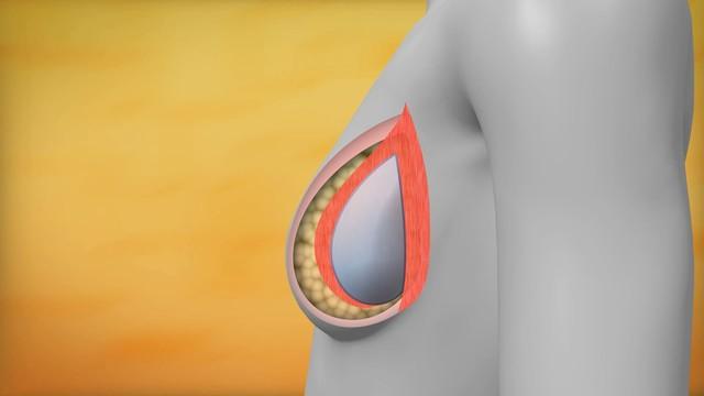Próteses de silicone para as mamas; saiba tudo no Viver Bem. (Foto: Reprodução / TV Tribuna)
