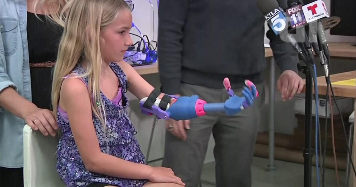 Menina de 7 anos ganha mão produzida em impressora 3D