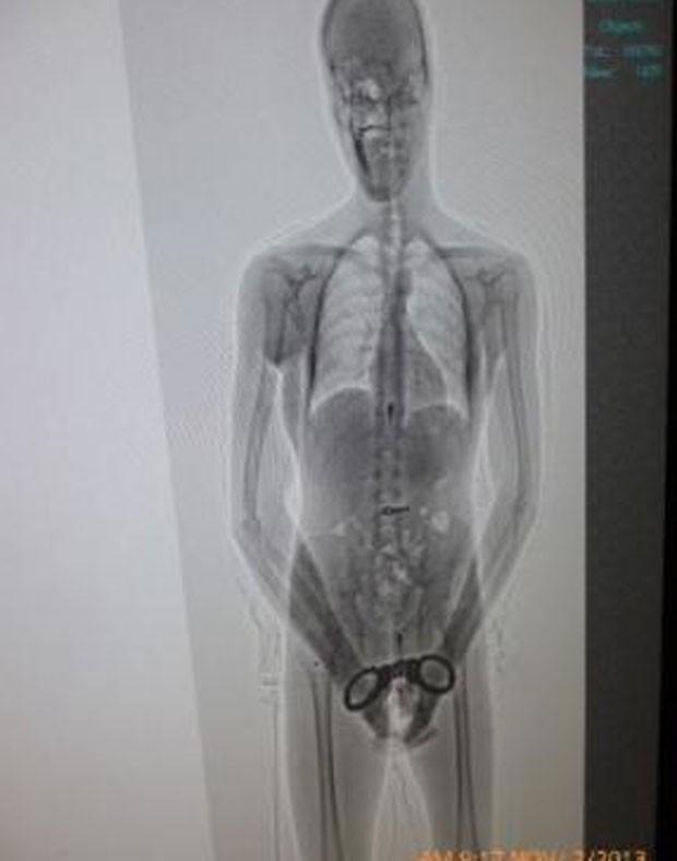 Preso engole chave para abrir algemas em cadeia no Uruguai (Foto: Reprodução/Ministerio del Interior de Uruguay)