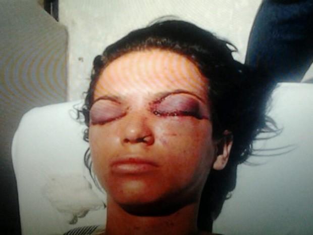 Mulher perde parte da visão após ter olhos perfurados por agressor, em Goiânia, Goiás (Foto: Arquivo pessoal)