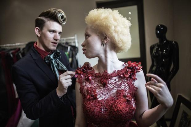 Thando Hopa, modelo albina sul-africana (Foto: AFP)