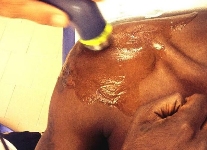 Balotelli mostra tratamento no ombro (Foto: Reprodução / Twitter)