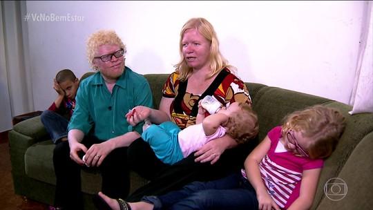Série Invisíveis conta histórias de brasileiros albinos