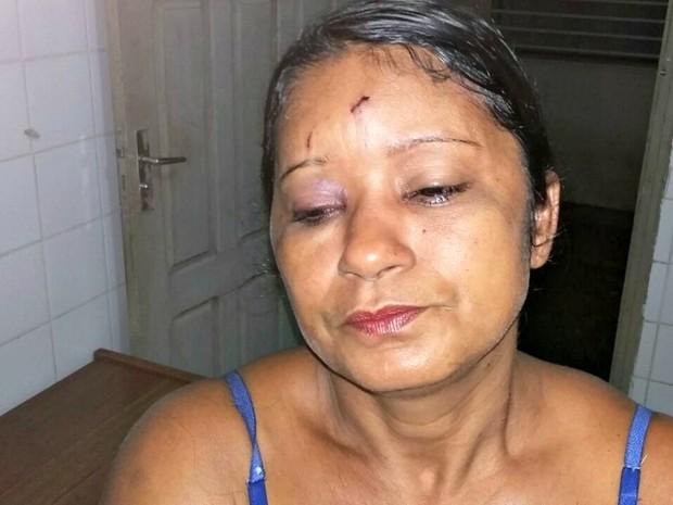 Sandra diz que é constantemente agredida pelo marido  (Foto: Adelcimar Carvalho/G1)