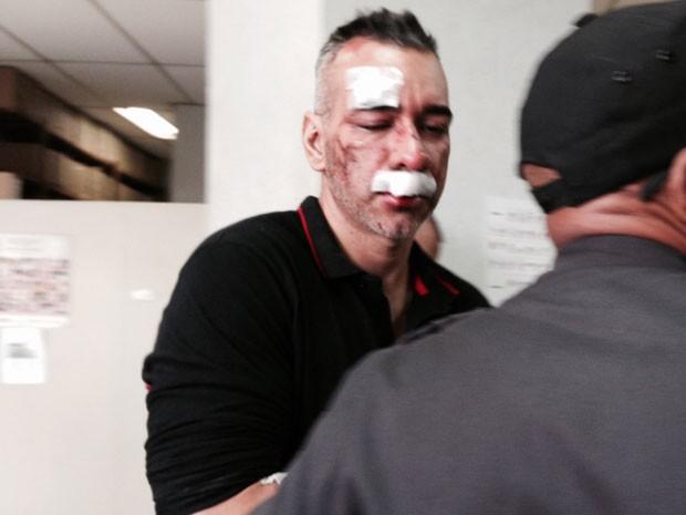 Cahe, com ferimentos no rosto, chega à delegacia para prestar depoimento (Foto: Káthia Mello / G1)