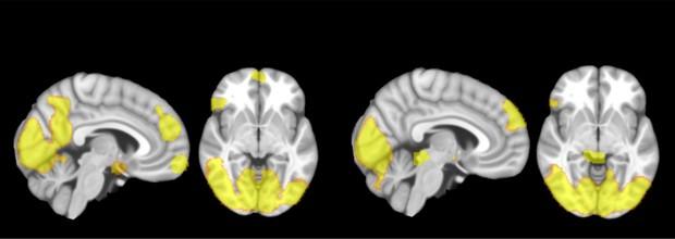 Cérebro de homens agressores (esq.) funcionam de forma diferente do que os de outros criminosos (dir.) (Foto: Universidade de Granada)