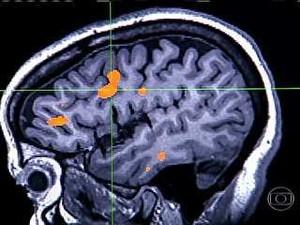 Cérebro (Foto: Reprodução/Globo Repórter)