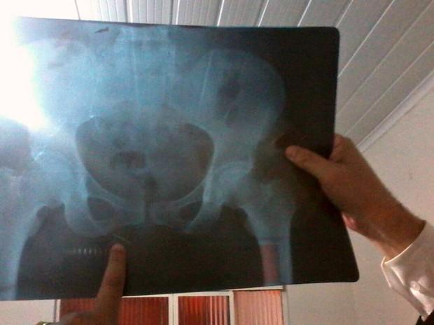 Paciente até hoje convive com agulha e sente dores (Foto: Edgar Calixto Paz)
