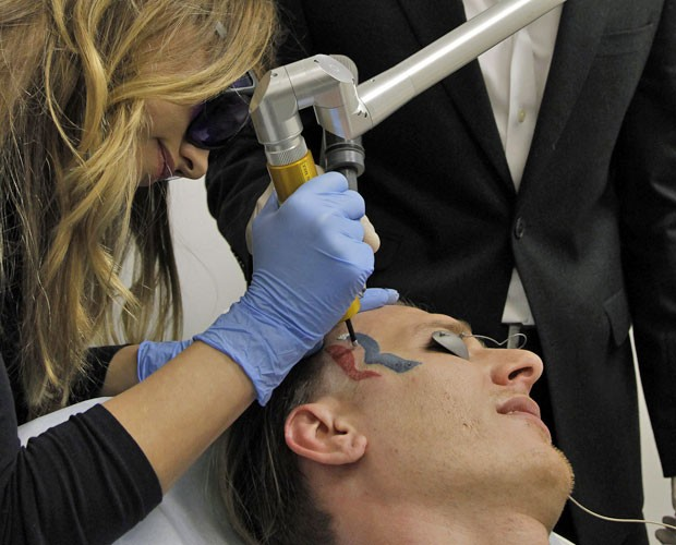 Eric Hartsburg, um lutador de Indiana, nos EUA, passa por procedimento para remover a tatuagem que fez com o logotipo da campanha do republicano Mitt Romney, para as eleições presidenciais deste ano  (Foto: Nick Ut/AP)