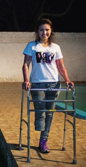 ESPERANÇA Kelen Ferreira, de 20 anos. Ela queimou braços e mãos e  parte de sua perna  direita foi amputada.  Na camiseta, as fotos das amigas que morreram no incêndio (Foto: Ricardo Jaeger/ÉPOCA)