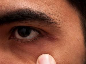 A secreção tóxica do bicho também atingiu o fotografo Regis Falcão.  (Foto: Arquivo pessoal)