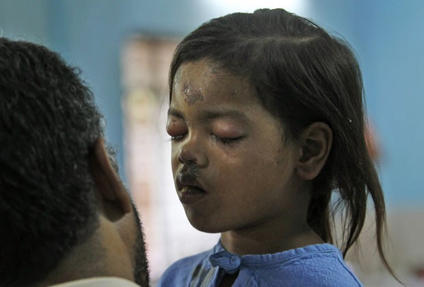 Sandhya Thakur, de 4 anos, foi resgatada com vida nesta sexta (4) (Foto: Rajanish Kakade/AP)