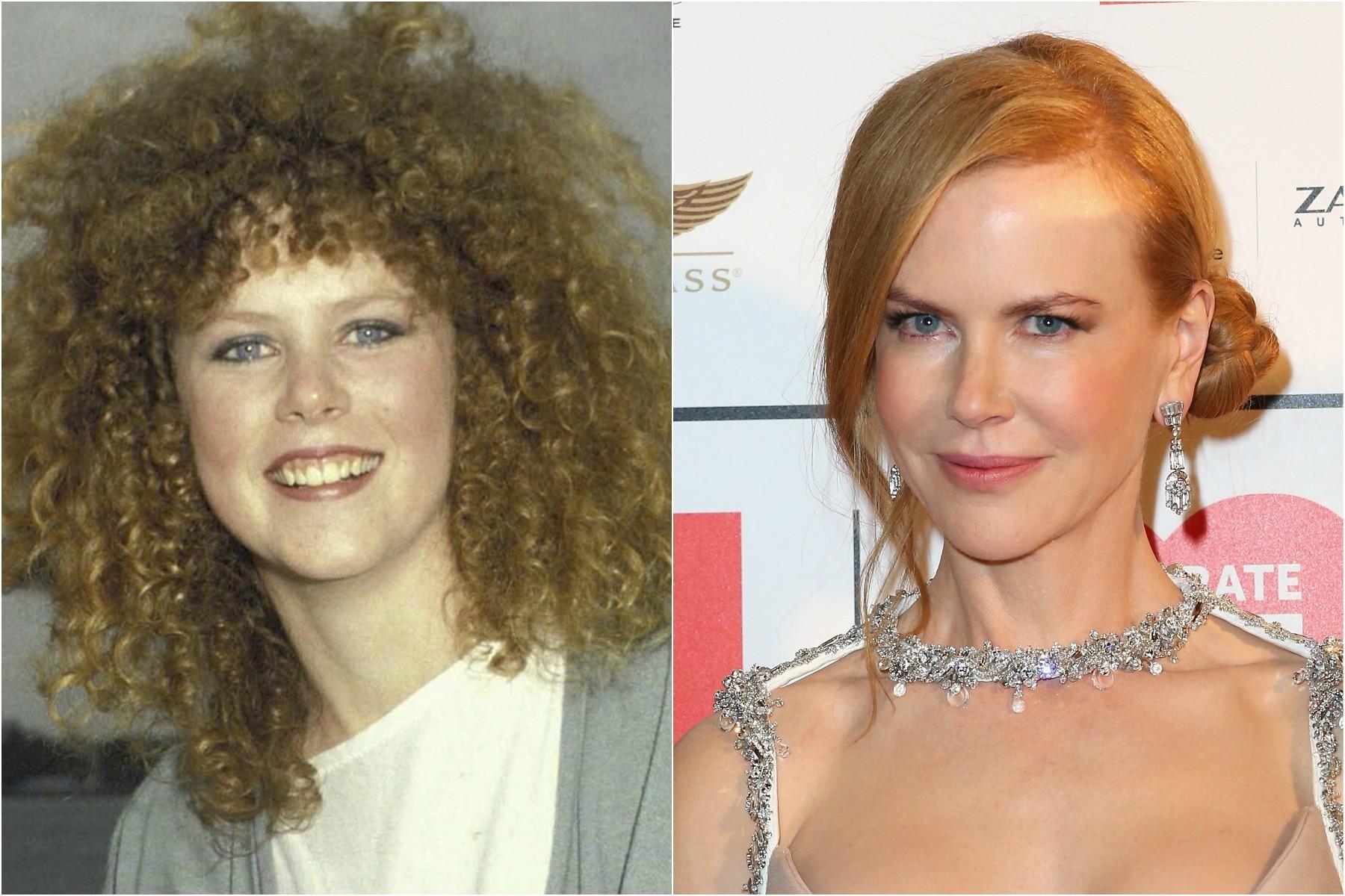 Nicole Kidman em 1983 e três décadas depois. (Foto: Getty Images)