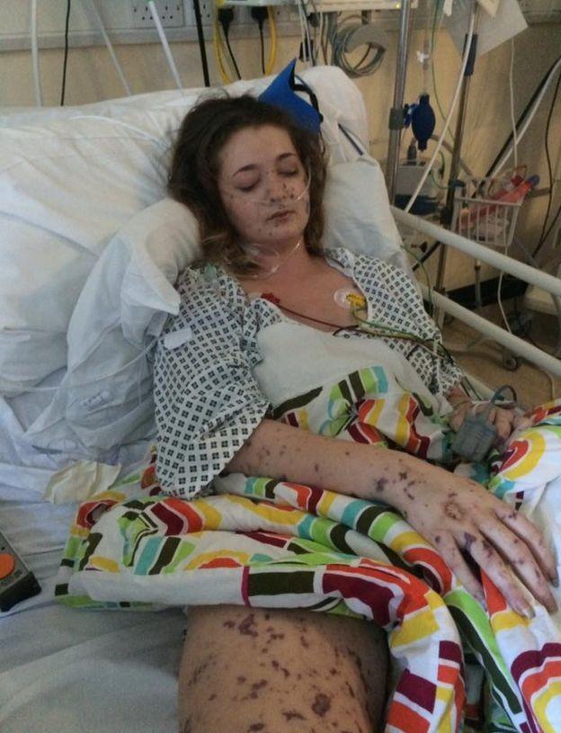 Charlene ficou nove dias em coma induzido (Foto: Charlene Colechin)