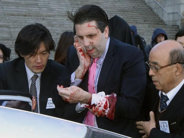 O embaixador dos EUA na Coréia do Sul Mark Lippert é fotografado após ser cortado no rosto por um homem não identificado em um fórum público no centro de Seul. Lippert tomava café da manhã quando foi atacado (Foto: Yonhap/Reuters)