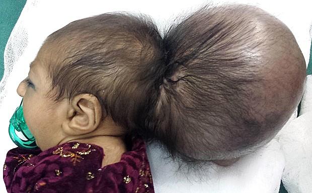 Criança no Afeganistão nasceu com crânio 'colado' à sua cabeça (Foto: STR/AFP)