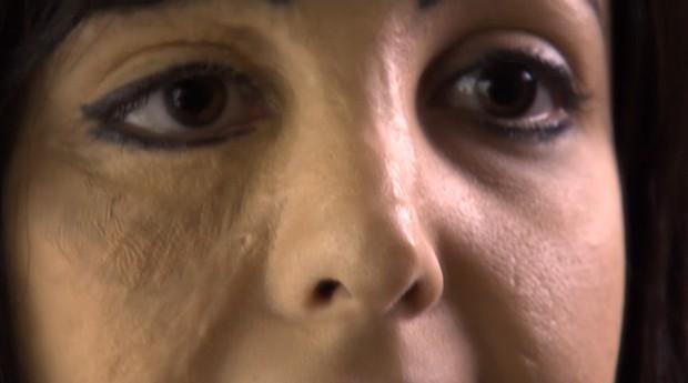 Após o tratamento, a diferença de tonalidade dos dois lados foi atenuada (Foto: Reprodução / YouTube)