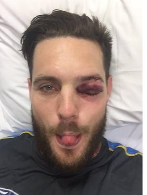 Jogador de críquete mostra estrago causado por bolada (Foto: Reprodução)